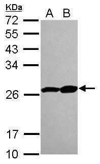 PSMB3 Antibody (PA5-28999)