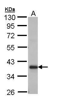 GRHPR Antibody (PA5-29001) in Western Blot