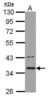 BRCC3 Antibody (PA5-29002)
