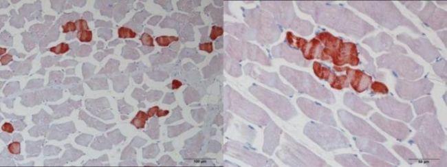 TNNT1 Antibody (PA5-29003)