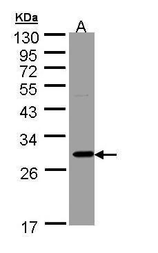 KHK Antibody (PA5-29004) in Western Blot
