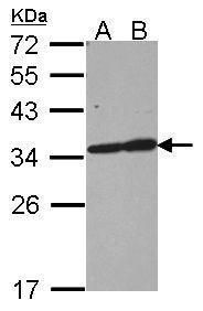 TPM3 Antibody (PA5-29005)