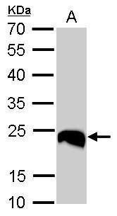 PGP9.5 Antibody (PA5-29012) in Western Blot