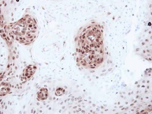 RbAp46 Antibody (PA5-29014) in Immunohistochemistry (Paraffin)