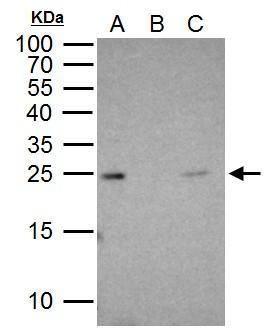 RAB5 Antibody (PA5-29022) in Immunoprecipitation
