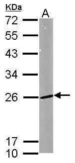 RAB5 Antibody (PA5-29022) in Western Blot