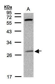 PHOX2B Antibody (PA5-29025) in Western Blot