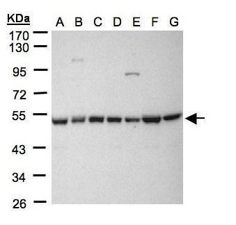 HDAC3 Antibody (PA5-29026) in Western Blot