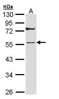 Cytokeratin 7 Antibody (PA5-29033) in Western Blot