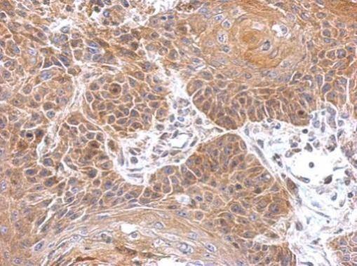 Gephyrin Antibody (PA5-29036)