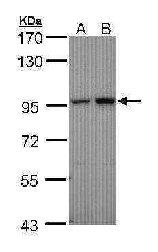 Aconitase 2 Antibody (PA5-29037) in Western Blot