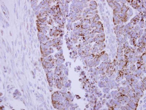DLAT Antibody (PA5-29043)