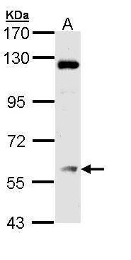 ATGL Antibody (PA5-29064) in Western Blot