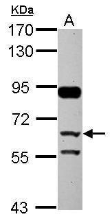 CFHR5 Antibody (PA5-29071) in Western Blot