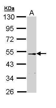 CETP Antibody (PA5-29090) in Western Blot