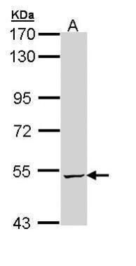 ALDH5A1 Antibody (PA5-29096) in Western Blot