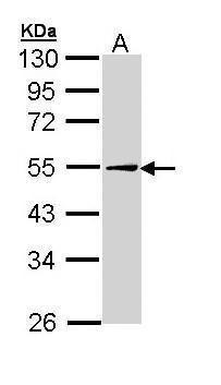 ADFP Antibody (PA5-29099) in Western Blot