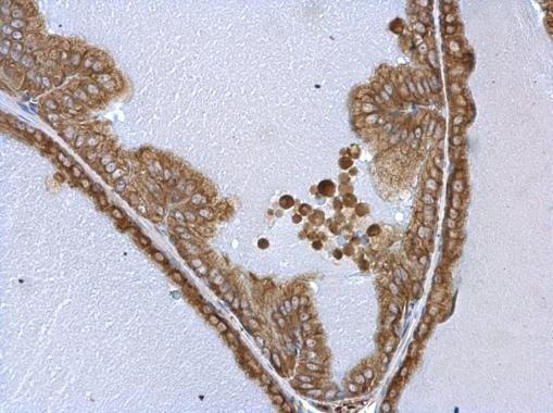 WARS Antibody (PA5-29102) in Immunohistochemistry (Paraffin)