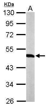 WARS Antibody (PA5-29102) in Western Blot