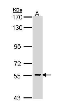 Cdc73 Antibody (PA5-29114) in Western Blot