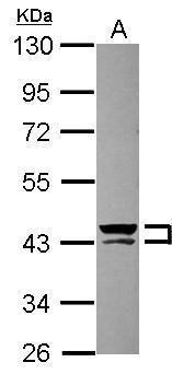 Cytokeratin 13 Antibody (PA5-29120) in Western Blot