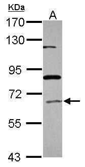 ACOX1 Antibody (PA5-29124) in Western Blot