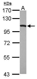 Dynamin 1 Antibody (PA5-29128)