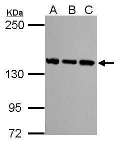 SMC3 Antibody (PA5-29131) in Western Blot