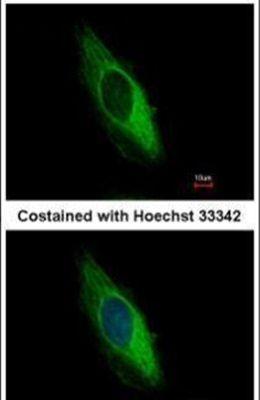 Cytokeratin 6B Antibody (PA5-29134)