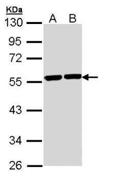 TUBA8 Antibody (PA5-29135) in Western Blot