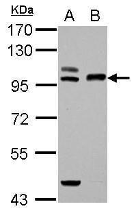 TFR2 Antibody (PA5-29137) in Western Blot
