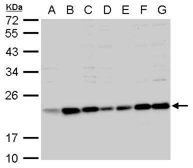 BID Antibody (PA5-29159) in Western Blot