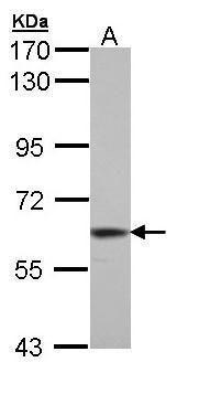 TrxR1 Antibody (PA5-29164) in Western Blot