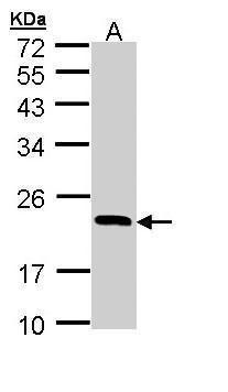 RBP4 Antibody (PA5-29173) in Western Blot