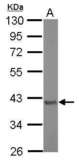 Aspartoacylase Antibody (PA5-29180) in Western Blot