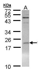 SUMO1 Antibody (PA5-29184) in Western Blot