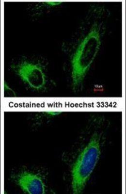 SLC25A6 Antibody (PA5-29199) in Immunofluorescence