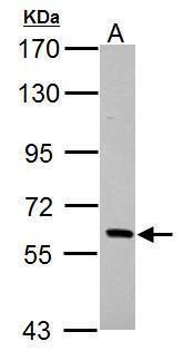 PAK1 Antibody (PA5-29224) in Western Blot