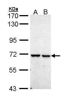 PPIL2 Antibody (PA5-29239) in Western Blot