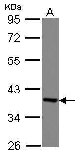 EEF1D Antibody (PA5-29242) in Western Blot