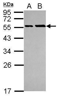 PHD3 Antibody (PA5-29260) in Western Blot