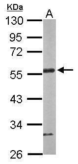 CtBP1 Antibody (PA5-29267) in Western Blot