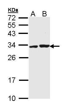 APIP Antibody (PA5-29269) in Western Blot