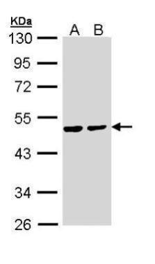 PPM1A Antibody (PA5-29275) in Western Blot