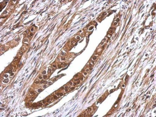 RUVBL1 Antibody (PA5-29278) in Immunohistochemistry (Paraffin)