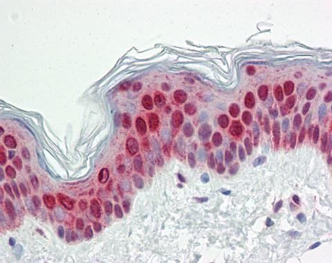 SPC25 Antibody (PA5-29282)