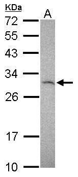 TIMP1 Antibody (PA5-29283) in Western Blot