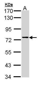 GRK6 Antibody (PA5-29297)