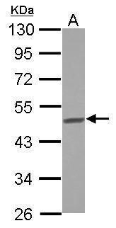 BCKDHA Antibody (PA5-29300) in Western Blot