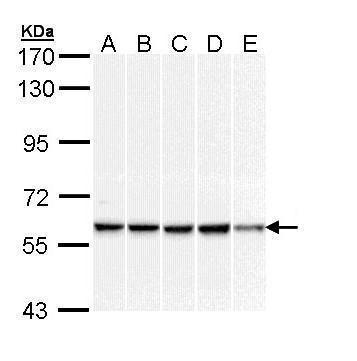 DNAJC3 Antibody (PA5-29301) in Western Blot